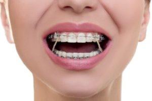 مشکلات نامرتبی دندانها