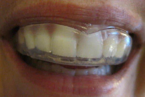 آیا دندان قروچه را میتوان با ارتدنسی درمان کرد؟